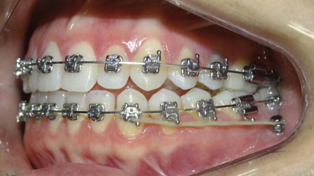 Conheça o curso de Mini-Implantes do Instituto Marcelo Pedreira e alavanque sua carreira.