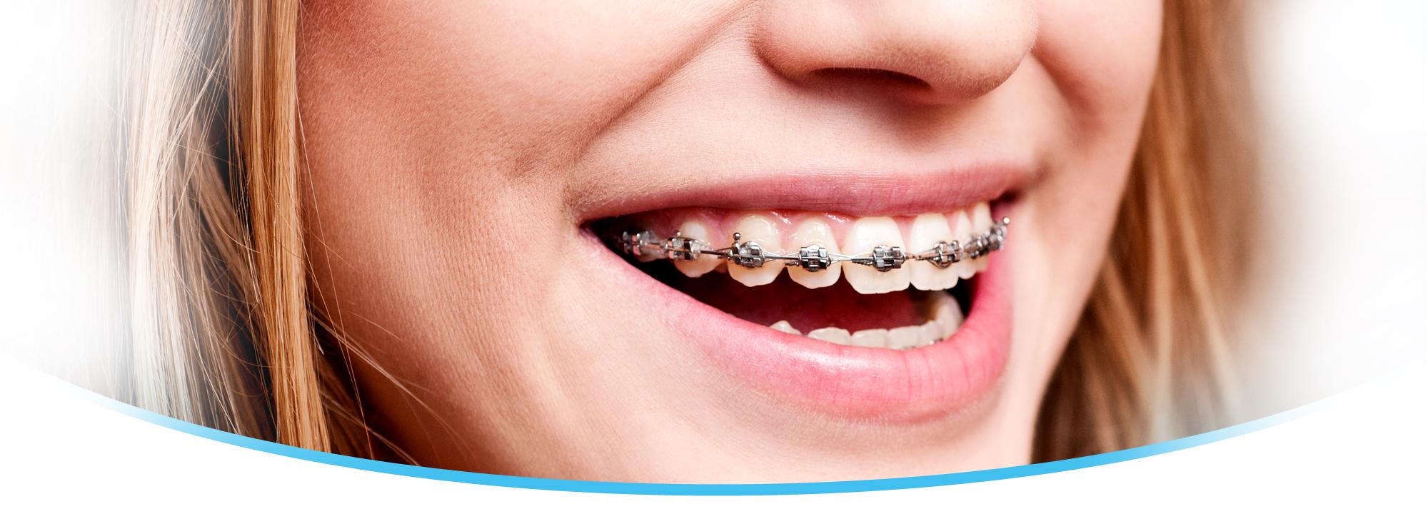 Especialização em Ortodontia: Monografias do curso