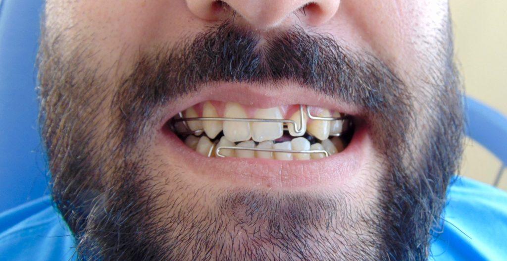 ortopedia funcional dos maxilares- adulto