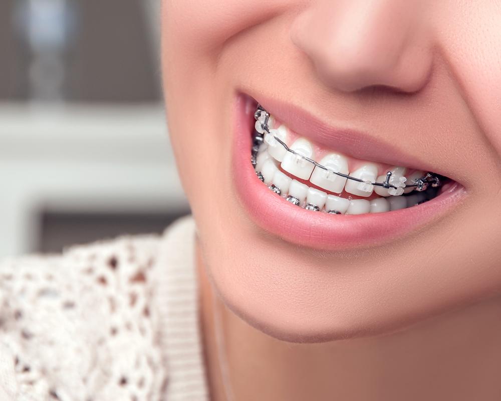prolongar o tempo entre consultas na ortodontia: Aposte nos bráquetes autoligados